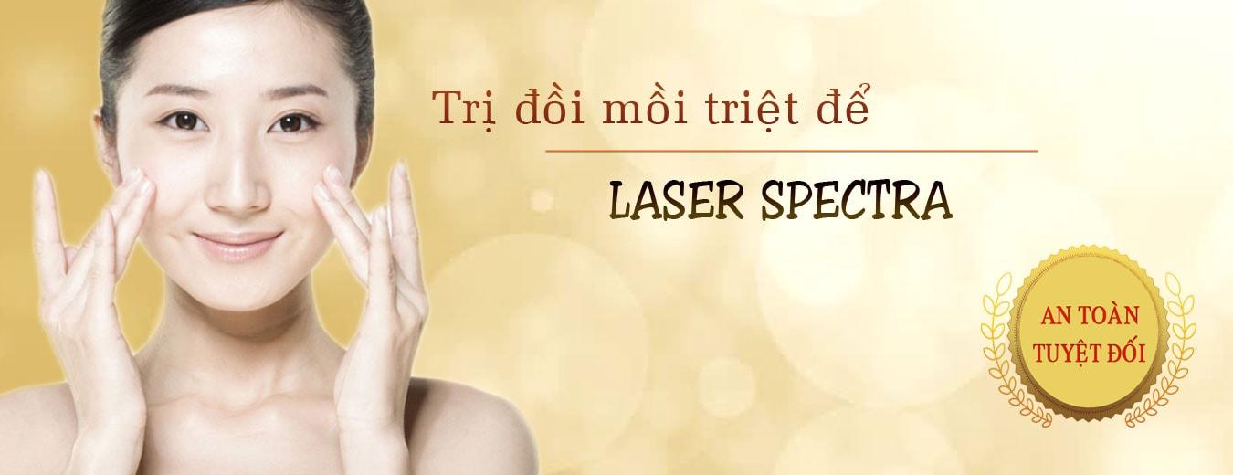 tham my nguyen du sai gon Điều trị đồi mồi với Laser spectra