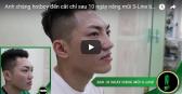tham my nguyen du sai gon Anh chàng hotboy đến cắt chỉ sau 10 ngày nâng mũi S-Line bọc sụn vành tai tại VTM Nguyễn DU