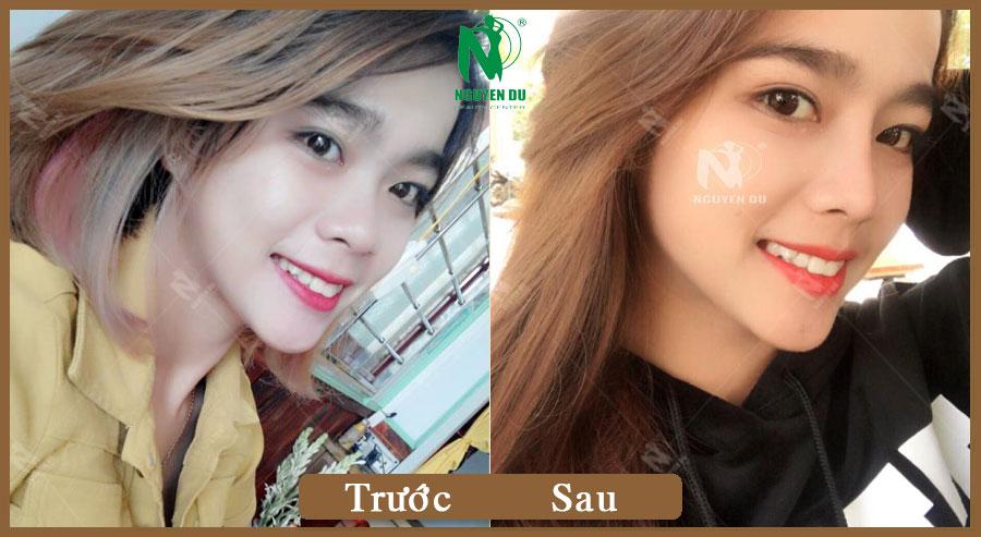 Nâng mũi S-Line - Nguyễn Tú
