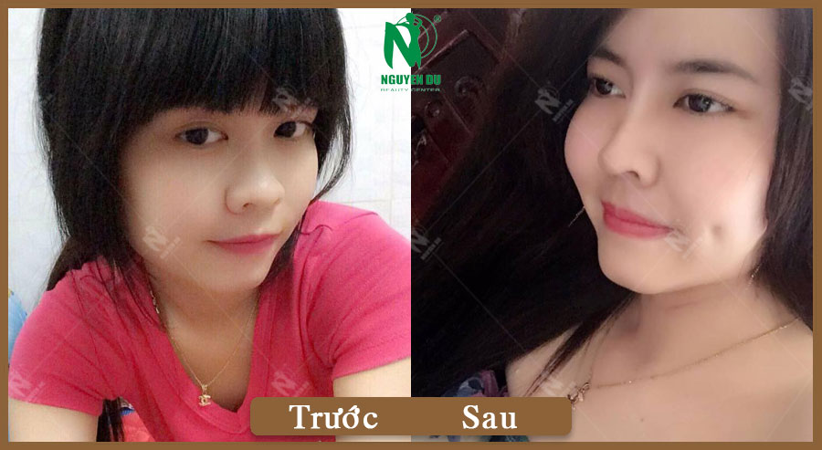 Nâng mũi SLine - Loan Kun