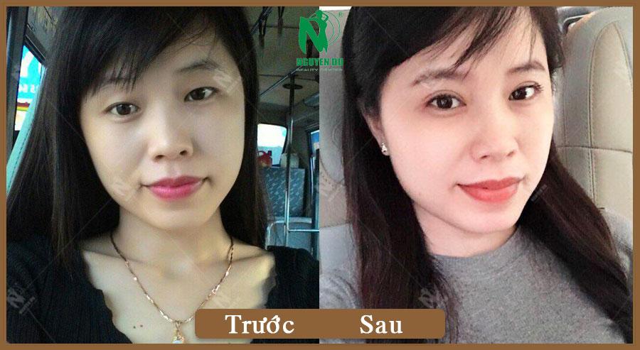 Mắt Mini Open - Nguyễn Trinh
