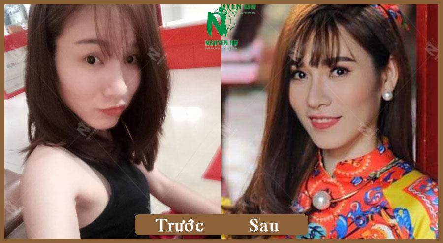 Độn Cằm Vline - Nâng Mũi L-Line  - Phạm Toàn