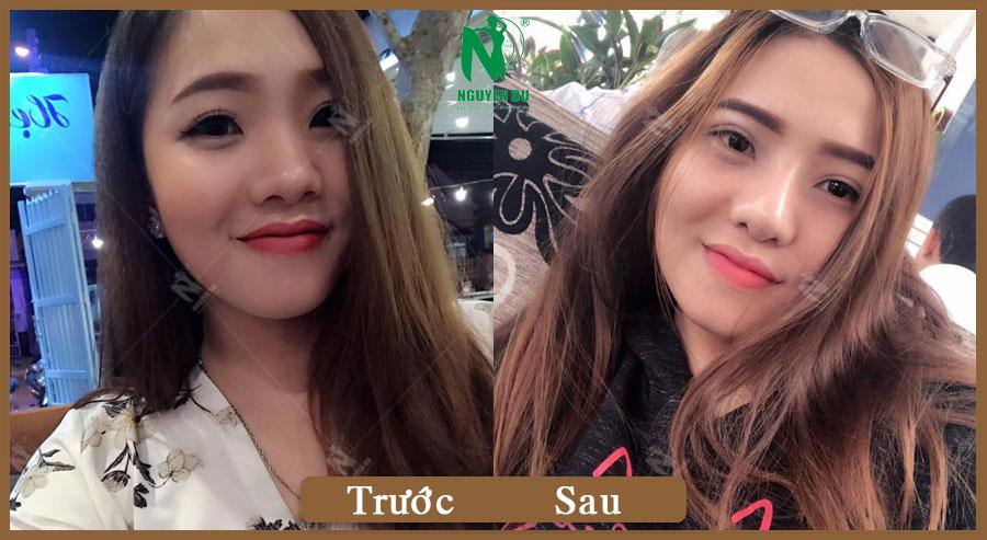 Nâng mũi  - Huỳnh Như