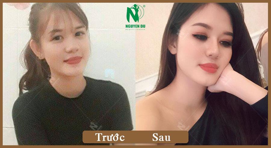 Nâng mũi - Phan Thúy